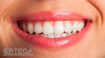 ¿Qué son y de que están formados los dientes?